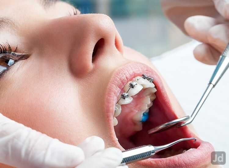 Lekh Orthodontic And Multi Specialty Dental Clinic